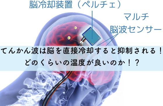 てんかん波は脳を直接冷却すると抑制される!どのくらいの温度が良いのか!?