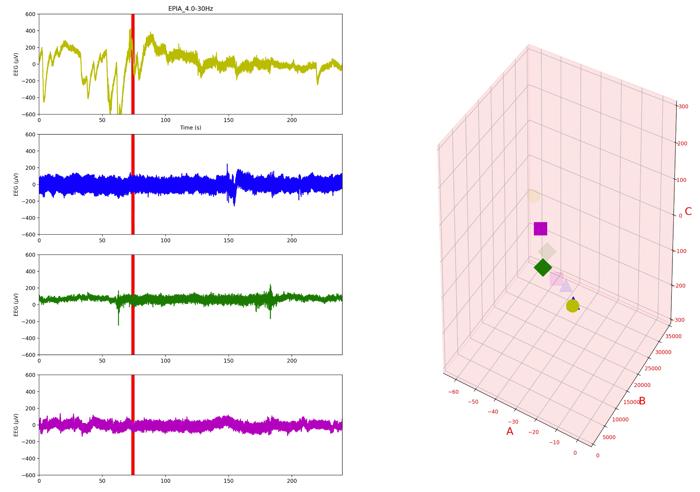 最小二乗法によるパラメータ同定奮闘記4