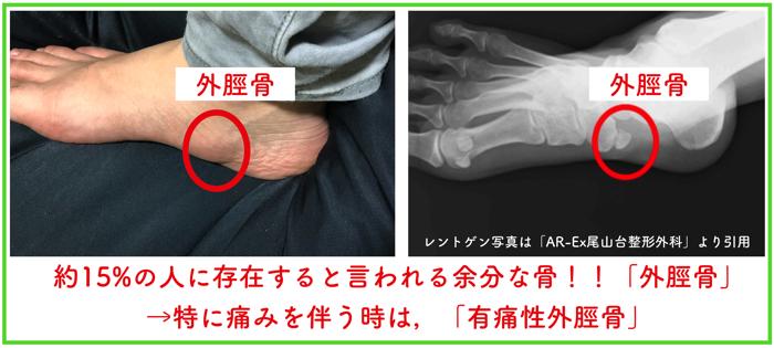 15%の人の足の内側にある外脛骨があったんだけど